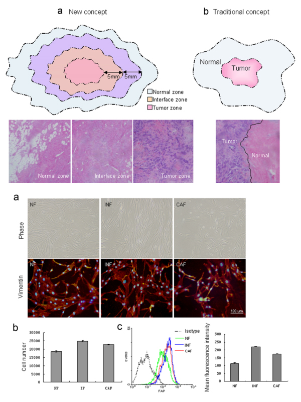 Stromal fibroblasts_01